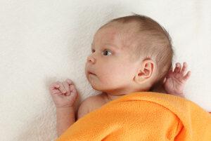 Børneeksem – Kløende tør hud